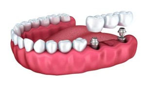 dental-bridge-implant