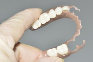 flexible-partial-denture